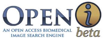 Openi logo