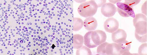 Stained blood flim under microscope next two image of red blood cells infected with malaria