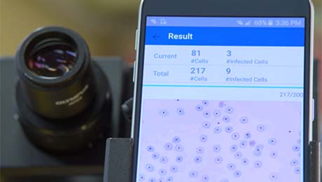 The set-up for the malaria screener, showing a smartphone attache to the eyepiece of a microscope on which are visible red blood cells