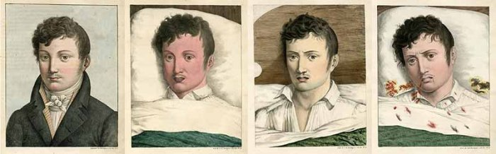 Four illustrations depicting the facial manifestations of yellow fever in the same patient